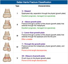 Salter Harris Fracture Classification I: S (Slipped epiphysis) II: A (fracture Above physis), most common III: L (fracture beLow physis) IV: T (fracture Through physis) V: R (wRecked physis) I/II rx: nonoperative IV/V rx: surgery required Negative radiographs do not r/o a Salter I fracture