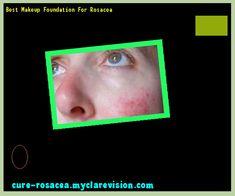 Best Makeup Foundation For Rosacea 193749 - Cure Rosacea