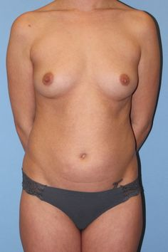 Before Mommy Makeover with breast augmentation and liposuction - Click to see the results of her AMAZING transformation!!