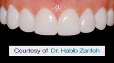 The Best Hollywood smile dentist in Beirut Lebanon Dr.Habib Zarifeh. Our services includes: Hollywood smile, dentist, dental clinic, veneers, lumineers, teeth whitening, Laser bleaching, Laser dentistry, hospital, Beirut, Lebanon, gum,plastic, surgery, gummy smile, plastic surgery, Hollywood smile Lebanon. covering all arab countries with Medical tourism in Lebanon and Saudi Arabia. Call us now: +96170567444 (WhatsApp...) Http://www.veneersbeirutlebanon.com