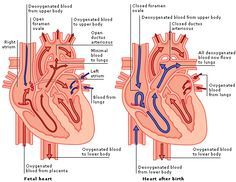 fetal circulation after birth | Structure and Function: The Heart Before and After Birth