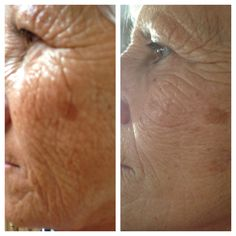 Before Nerium and After