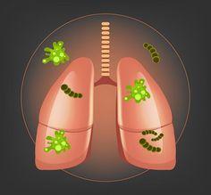 La necesidad de limpiar los pulmones y eliminar las toxinas te ayudará a mejorar no sólo la capacidad respiratoria, sino también la oxigenación de la sangre