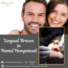 Lingual braces are a secret smile system, fitted at the back of the teeth, making it completely invisible to others. Alexandra Dental Clinic offers lingual braces in Hemel Hempstead to straightening teeth and gets your natural smile. Lingual Braces, Hemel Hempstead, Teeth Straightening, Dental Veneers, Teeth Braces, Orthodontics, Your Smile, Clinic, Improve Yourself