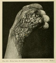 """1917. """"Radiation burn to the hand  Note the necrotic dermatitis present in this burn. This signifies either an extremely high one-time dose, or continued exposure to a moderate dose of gamma radiation. Even with a one-time exposure to the radiation, necrosis often does not set in until 2-3 weeks after the initial burn develops."""" This is why the dental hygienist runs out of the room so fast after she puts the lead apron on you."""