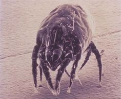 What You Had to Understand about Murder Allergen - http://nitromite.co.uk/kills-mites/need-know-killing-dust-mites/  Visit http://nitromite.co.uk to read more on this topic