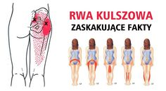 Rwa kulszowa - musisz poznać te fakty!  #zdrowie #rwa #choroby #poland #ciekawostki #fitness #zdrowejedzenie Herbal Remedies, Natural Remedies, Cardiac Problems, Health And Wellness, Health Fitness, Yoga, Back Pain, Healthy Tips, Pilates