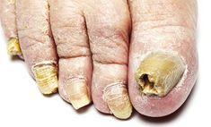 Grab detailed information about black toenail fungus. Use prescription-strength home remedies to get rid of black toenail fungus. Black Toenail Fungus, Fingernail Fungus, Toenail Fungus Remedies, Toenail Fungus Treatment, Nail Treatment, Infected Toe, Types Of Fungi, Toe Fungus, Home Remedies