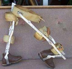 Children's leg braces