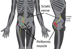 Sciatica and lower back pain can occur when the sciatic nerve is irritated due to tension or swelling in the piriformis muscle. Both the sciatic nerve and the piriformis muscle are in the buttock area Sciatic Nerve Relief, Sciatica Pain Treatment, Sciatica Massage, Sciatica Stretches, Sciatica Symptoms, Sciatic Pain, Sciatic Nerve Surgery, Glutes, Chronic Pain