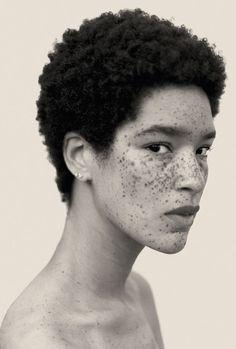 Fotograf Reto Caduff    #freckles /#sommersprossen