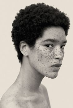 """For his recently published picture book Freckles (Splice Pictures Publishing), the Swiss photographer Reto Caduff has taken pictures of freckled women all over Europe. His pictures prove: freckles are beautiful. Don't hide yourself in the shade! I think what I love about this the most is the vast diversity of people who are blessed with freckles."""