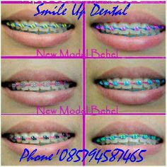 Cute Braces Colors, Smile Is, Braces Tips, Brace Face, Dental, Teeth, Make Up, Bedroom Ideas, Nails