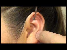 Colocación correcta de estimulos para Auriculoterapia - YouTube