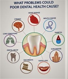 Dental implants are a natural looking way to replace your missing teeth.Our dental specialist in Anthem give the best treatment for your missing tooth.Our staff At Element Dental truly care about the. Dental Facts, Dental Humor, Dental Surgery, Dental Implants, Surgery Humor, Oral Health, Dental Health, Dental Posters, Dental Life