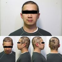 Chemotherapy and Hair Loss Hyperpigmentation treatment at home meladermpigmentreducingcomplex.org