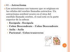  61 – Astrocítoma  Los astrocitomas son tumores que se originan en las células del cerebro llamadas astrocitos. Un astro...