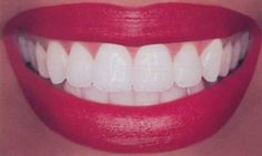 If you are looking for high-quality Houston teeth whitening kit, My Smile has a reputation for such items. The company takes pride in providing high-quality dentistry products to their customers. With the professional guidance, you will get the best results and keep smiling, with a whole lot of confidence. For More Information visit https://eclipsewhitening.com/