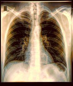 Diagnoses: Pulmonary bleb | DAN Southern Africa