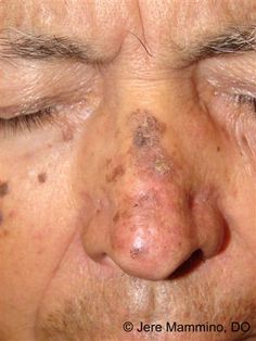 Actinic Keratosis - American Osteopathic College of Dermatology (AOCD)