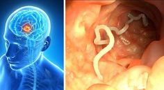 Intestinal worms are parasites that take advantage of the human body to feed and reproduce. Almost one-third of the world's population (just over 2 billion people) is affected by intestinal worms. Natural Home Remedies, Herbal Remedies, For Your Health, Health And Wellness, Health Tips, Health Articles, Clean Lungs, True Health, Natural Remedies