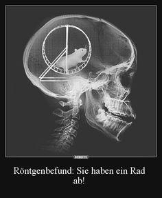 Röntgenbefund: Sie haben ein Rad ab! | Lustige Bilder, Sprüche, Witze, echt lustig