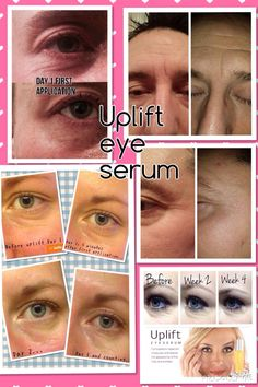Both women and men with amazing results from using Younique's Uplift Serum.  Get your today..https://www.youniqueproducts.com/ElainaChamp/party/1582976/view