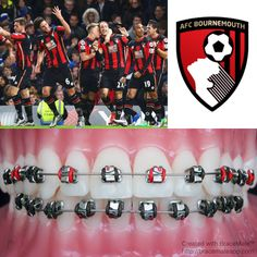 Football Fridays ⚽️ Today's featured team is #AFC #Bournemouth #premierleague #braces #brackets #orthodontics #orthodontist #ortodoncia #ortodoncista #ortodonzia #ortodontia #ortodontista #orthodontie #kieferorthopädie #zahnspange #football #soccer