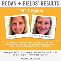 """Take a look at this amazing """"Before and After"""" transformation shared by Rodan + Fields® Consultant Lauren E. after using Rodan + Fields REVE..."""