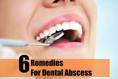 6 Remedies for Dental Abscess