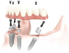 Верните зубы за 1 день! Пожизненная гарантия. Проверенная технология ALL-ON-4…