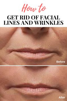Are you looking to get rid of smile lines, marionette lines (lines running from the corners of your mouth), Skin depressions, Scarring (including acne scars) or Mid-face volume loss? There is a solution!!! #Radiesse #Volumizing #Filler #Wrinkles #SmileLines #Acnescarring #Acne Wrinkle Remedies, Acne Remedies, Getting Rid Of Scars, Marionette Lines, How To Line Lips, Upper Lip, How To Get Rid Of Acne, Acne Scars, Facial