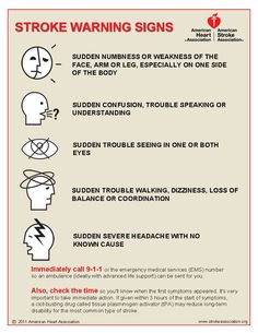 5 Warning Signs Of A Stroke ~ you could save a life!  #health