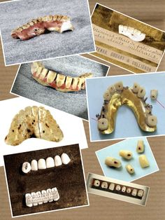 History of dentures!! When they were made of porcelain and gold!!  Things sure have changed!