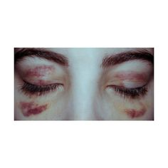 cw bruising ❤ liked on Polyvore featuring pictures, photos, injuries, blood, backgrounds and filler