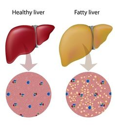 Non-alcoholic fatty liver disease (NAFLD) is currently the most common liver disease. Non-alcoholic steatohepatitis (NASH) is the advanced form of NAFLD …. While NAFLD is manifested by hepatic steatosis, NASH has the additional features of inflammation, cell injury and ballooning, and mitochondrial changes and/or fibrosis. The understanding of the pathogenesis of NAFLD has been evolving but is still not complete. Fat accumulation in the liver is the first step in the disease process.