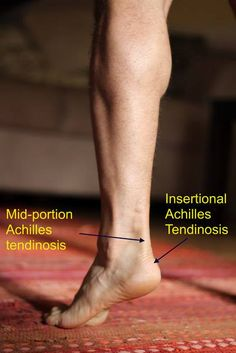Injury Proof Your Run – Achilles Tendonitis Treatment - As soon as man was able to walk, he ran. About six million years ago, since the day humans first rose from all fours, running has become a pleasurable and beneficial pastime for millions of people worldwide. #health #fitness #pain http://www.tridoshawellness.com/injury-proof-your-run-for-achilles-tendonitis-treatment/