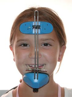 Child wearing orthodontic headgear. | Appliances | Pinterest ...