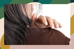 how-to-treat-dandruff How To Treat Dandruff, Man Pillow, Shampoo And Conditioner, Women Empowerment, Health Care, Treats, Hair Styles, Tips, Beauty