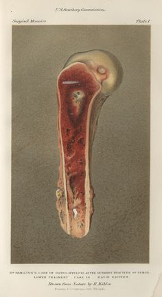 Infection in bullet wound, Surgical Memoirs of the War of the Rebellion, Vol 1, 1870