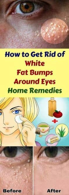 How to get rid of white around eyes