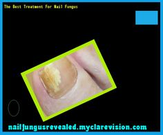 The best treatment for nail fungus - Nail Fungus Remedy. You have nothing to lose! Visit Site Now