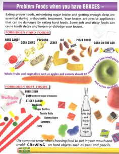 A fun visual of foods to avoid when wearing braces; then head over to MetalMouthMedia.net to see what you CAN eat with braces.
