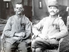 Soldier with disfiguring facial injuries wearing a mask which concealed his damaged face