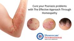 Psoriasis is a chronic type of skin problem. It usually arises due to the bacterial skin infections, injuries, certain medications. This type of skin problems are lasts for long time and changes the skin appearance. Homeopathy Treatment for Psoriasis is a very effective way to cure Psoriasis problems.