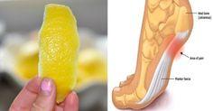1 scorza di limone è il trucco per sbarazzarsi di infiammazione e dolore cronico