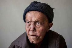 Leprosy Hospital Portraits Photography Iran