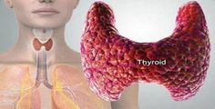 Hypothyroidism is a thyroid disease caused by failure of thyroid gland to produce adequate amount of thyroid hormone. This thyroid hormone is responsible for regulating metabolism,nervous system, heart, temperature, body weight and many other . Thyroid Symptoms, Thyroid Diet, Thyroid Hormone, Thyroid Disease, Thyroid Health, Thyroid Issues, Thyroid Cancer, Thyroid Vitamins, Demyelinating Disease