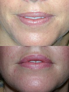 Top: Before | Bottom: One month after collagen to lips, botox to lips.A natural-looking result from lip filler requires a great deal of skill on the part of the physician doing the treatment. It takes time and a three-dimensional eye for beauty. All lips are different, and not every person can have lusciously red lips. This patient is a good example of a very natural result from lip filler, very alluring to the eye of the beholder.