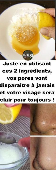 by using these 2 ingredients will your pores disappear forever and your face will be clear forever! Only by using these 2 ingredients will your pores disappear forever and your face will be clear forever! Mascara Hacks, Make Beauty, Beauty Tricks, Body Hacks, Clean Face, Natural Face, Diy Skin Care, 2 Ingredients, Wellness Tips